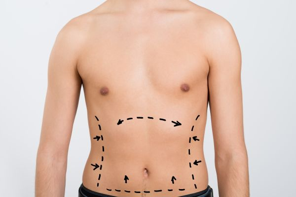Popular Body Areas To Remove Fat With Liposuction